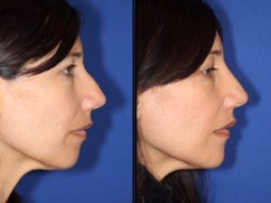 Typical Results of a Liquid Rhinoplasty