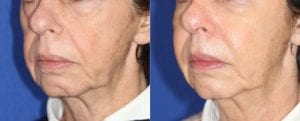 Typical results of a Liquid Facelift