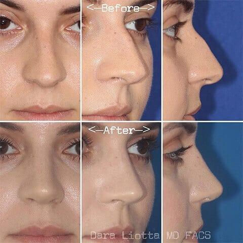 Rhinoplasty And Revision Rhinoplasty New York City Dr Dara Liotta