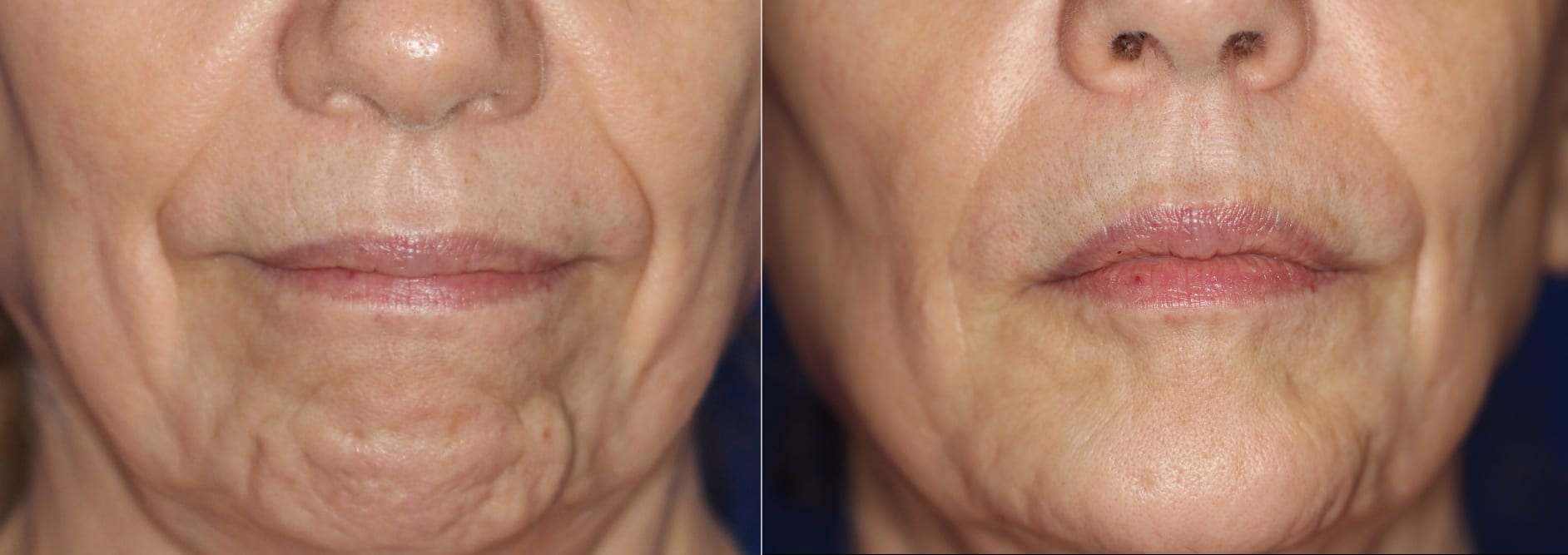 Botox can be used in the chin to smooth out dimpling in the skin