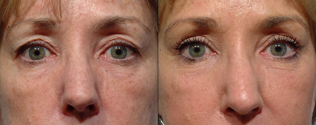 Eyelid Surgery - Before and After