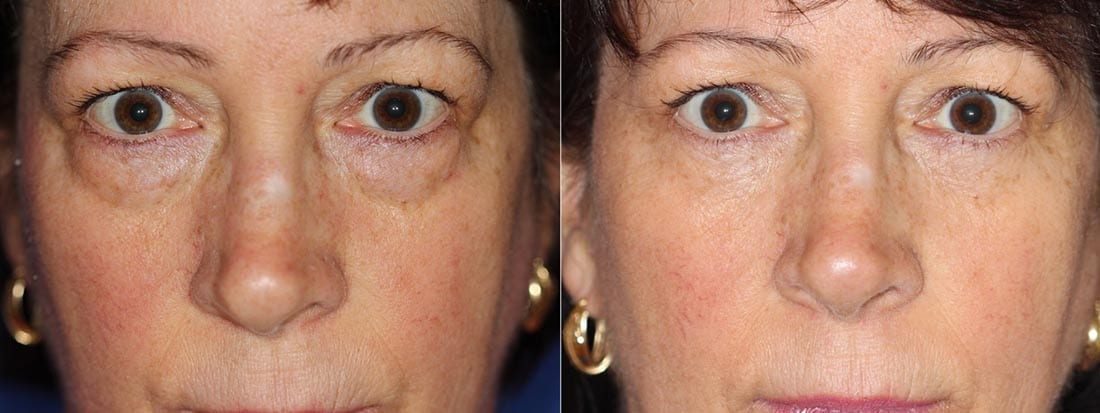 Dr. Dara Liotta - Eyelid Surgery - Before and After