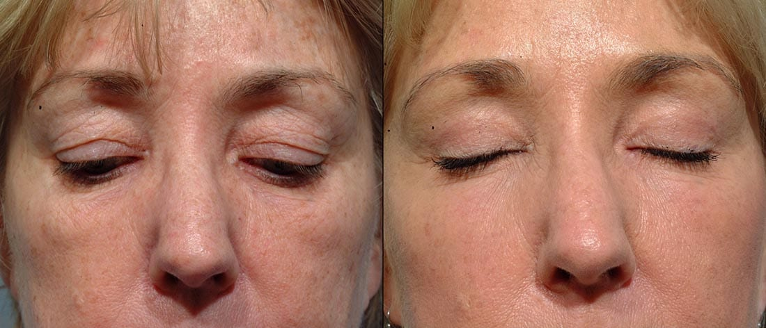 Dr. Dara Liotta - Eyelid Surgery - Before and After - Eyes closed