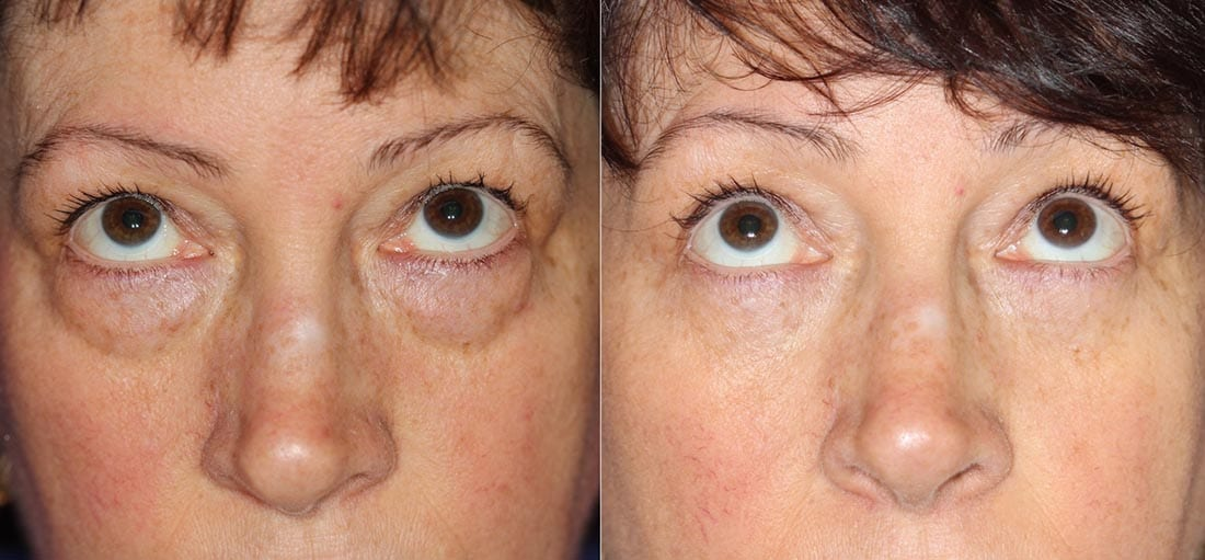 Dr. Dara Liotta - Eyelid Surgery - Before and After - Patient looking up