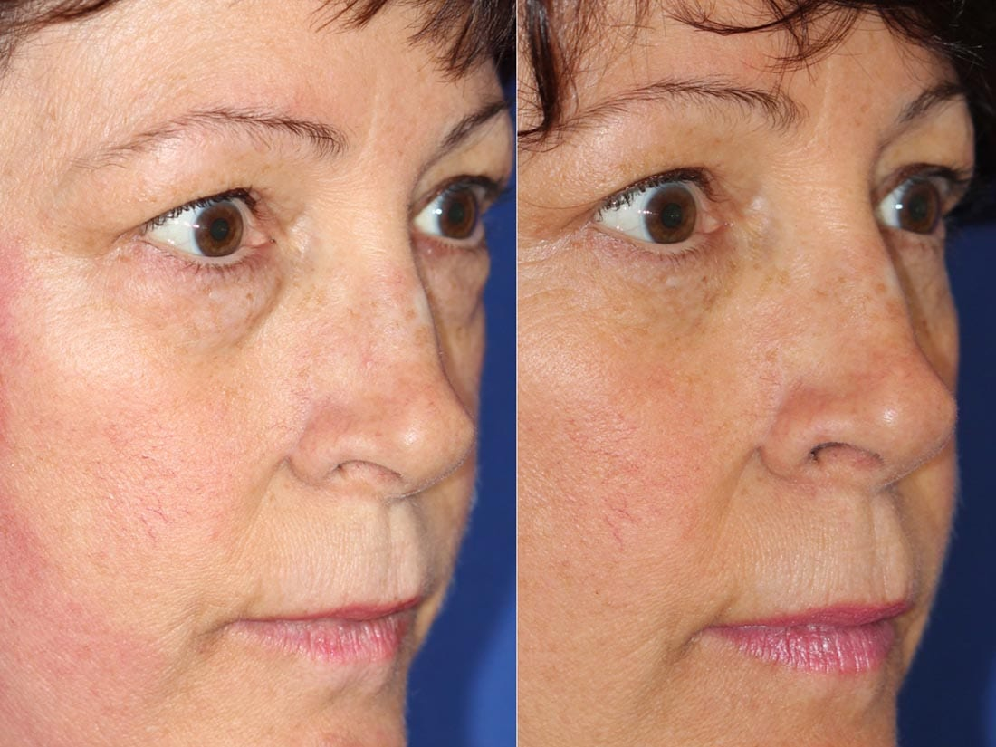 Dr. Dara Liotta - Eyelid Surgery - Before and After Profile