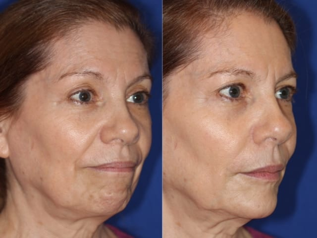 JUVEDERM® before and after.*Individual results may vary.