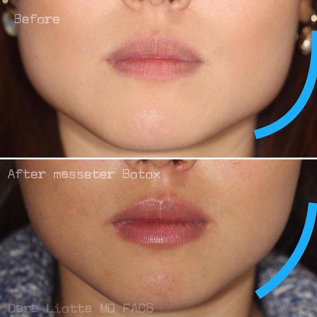 Before and after BOTOX® Cosmetic Masseter muscle
