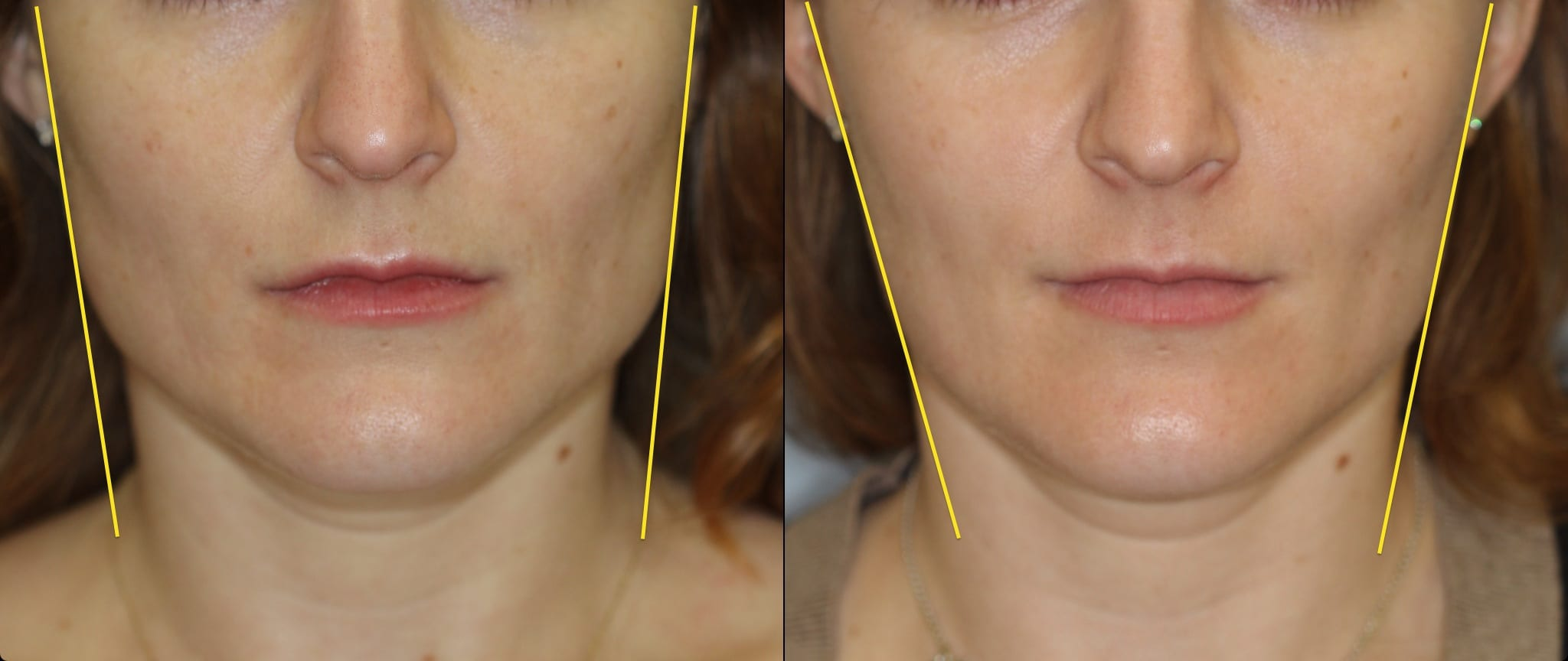 Woman's Masseter Muscle Marked Up for BOTOX® Cosmetic