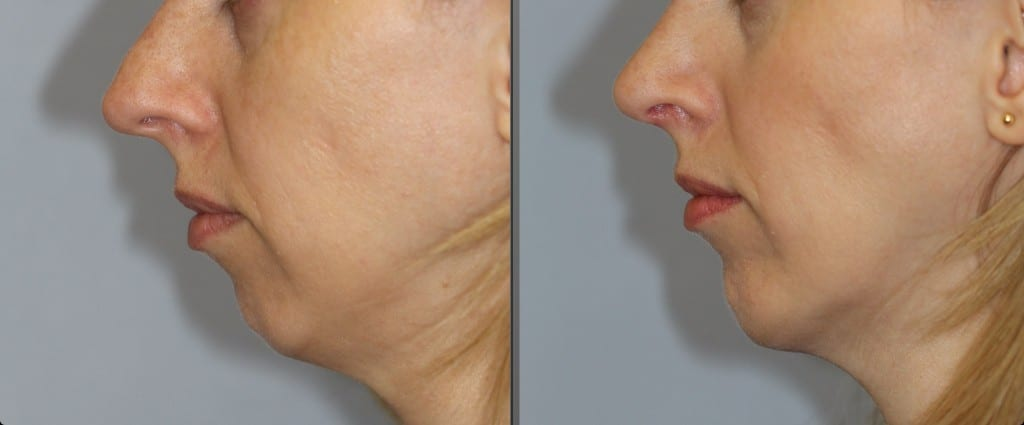 Before and after chin implant surgery