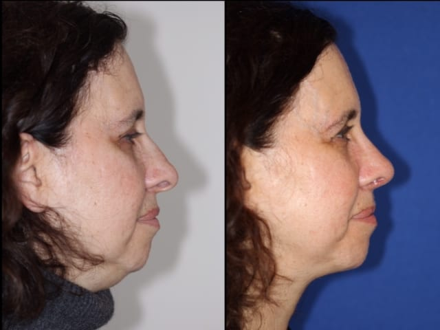 Before and After photo of neck lift
