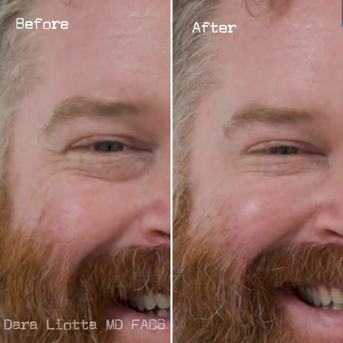 BOTOX® Cosmetic before and after 1