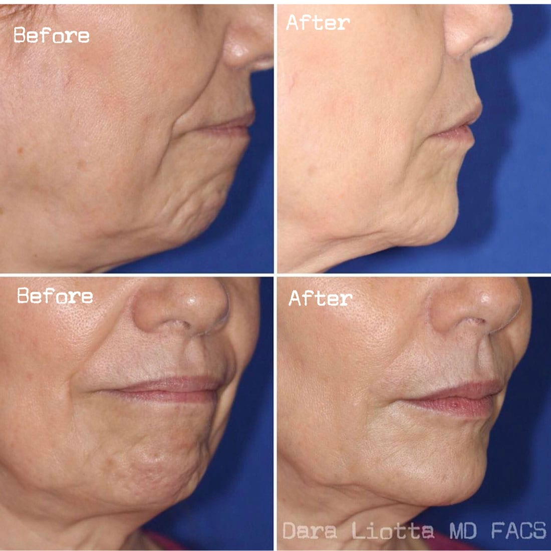 BOTOX® Cosmetic before and after patient 2