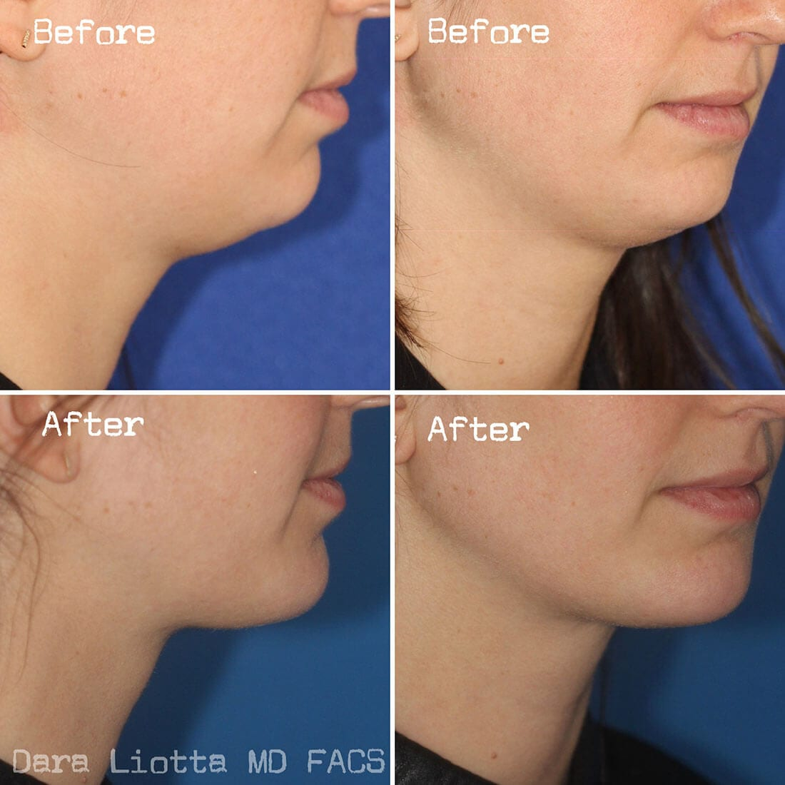 Chin and Submental Liposuction before and after 01