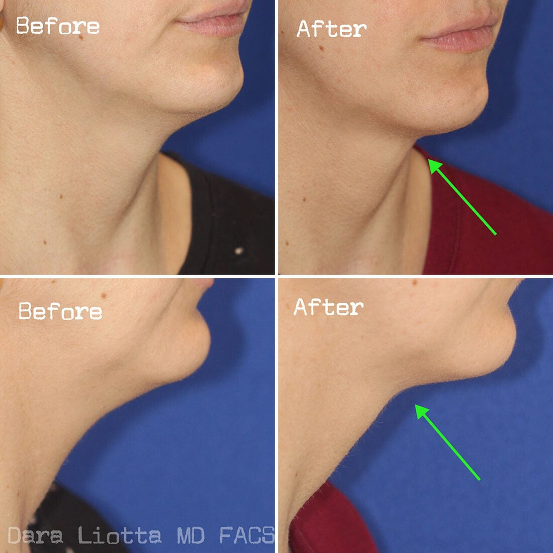 Chin and Submental Liposuction before and after 02