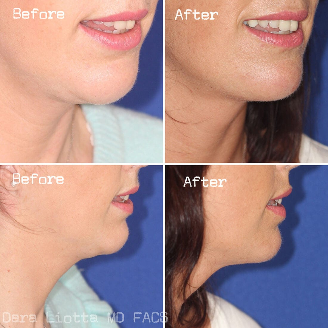 Chin and Submental Liposuction before and after 03