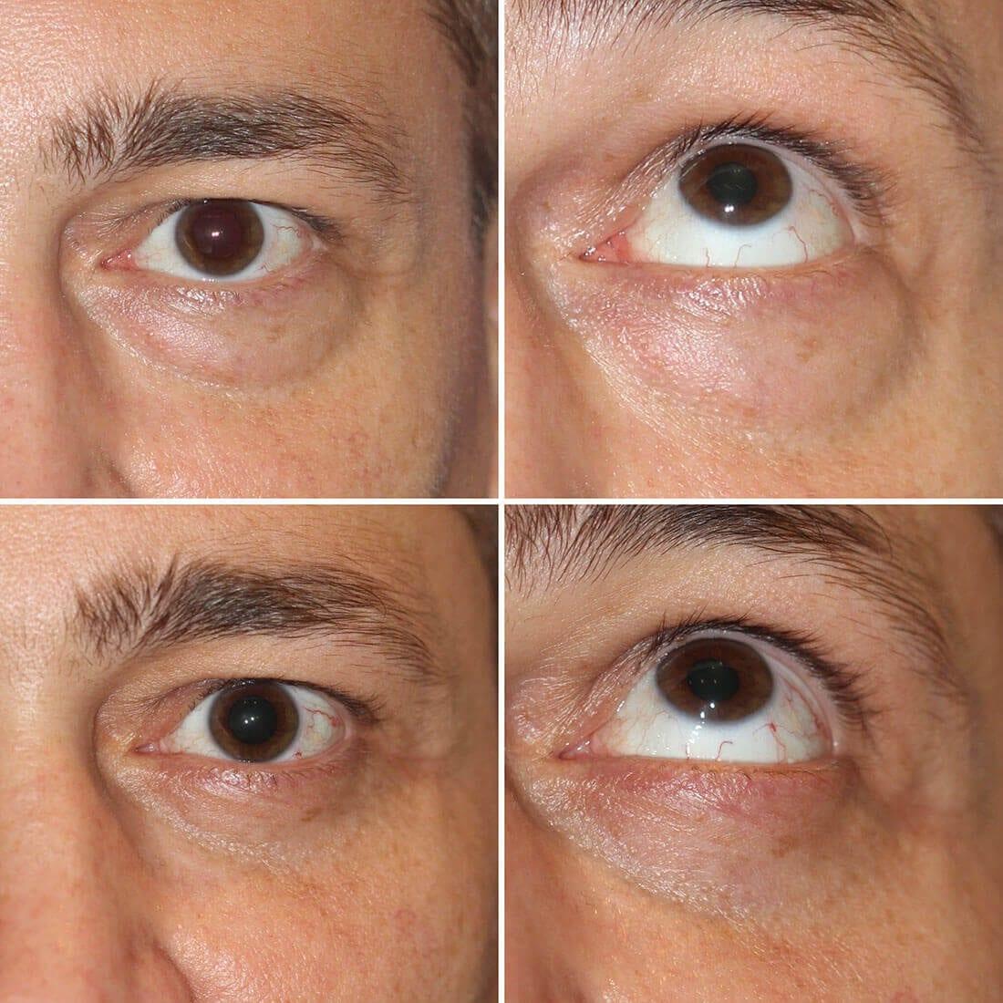 Eyelid Surgery 01
