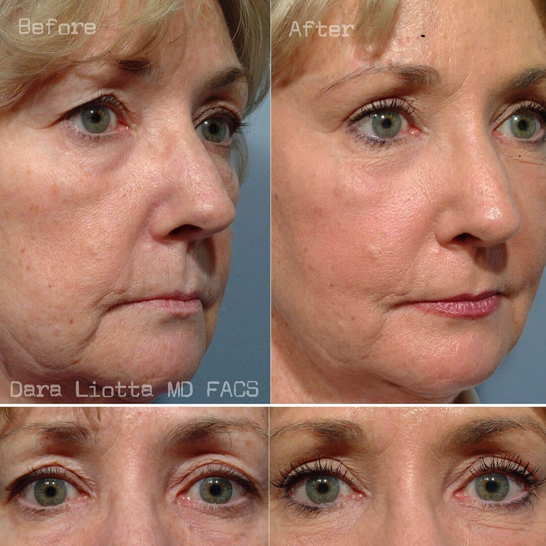 Before and After Eyelid Surgery 04