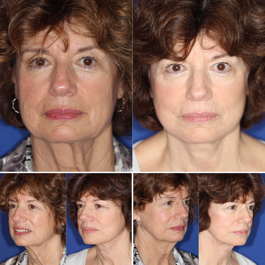 Facelift and Neck Lift Before and After Photo 01