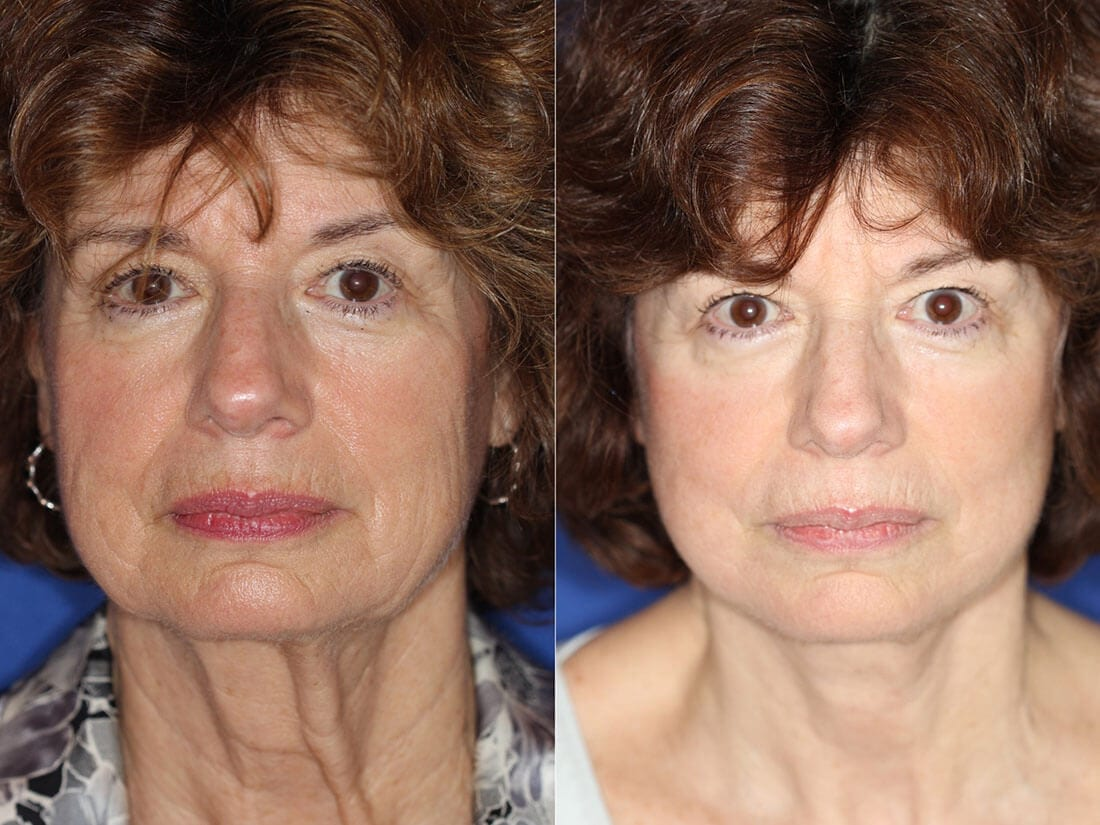 Facelift and Neck Lift Before and After Photo 01a