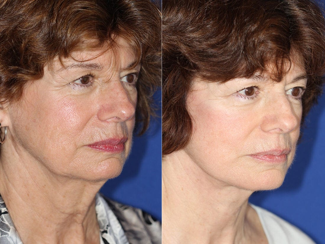Facelift and Neck Lift Before and After Photo 01b