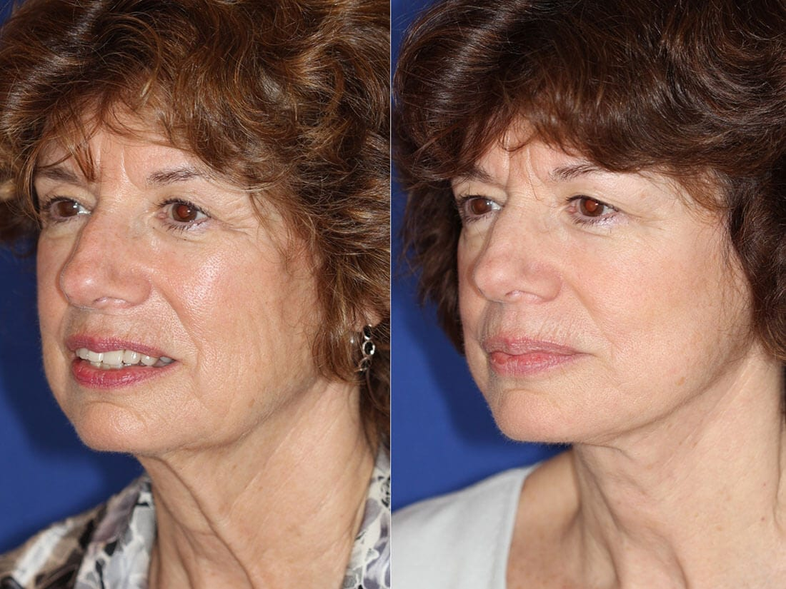 Facelift and Neck Lift Before and After Photo 01c