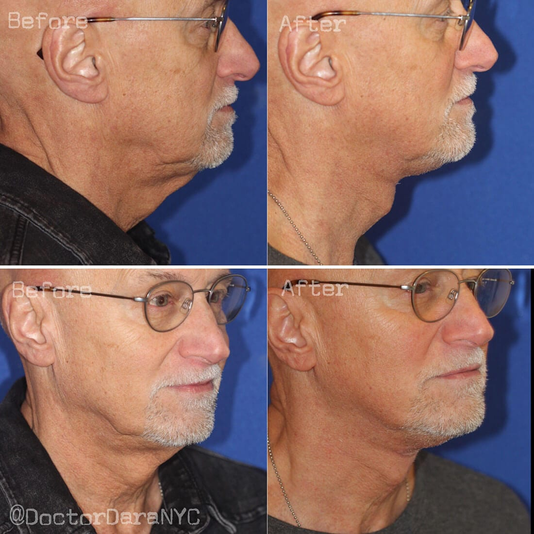 Facelift and Neck Lift Before and After Photo 02