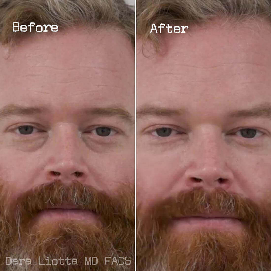 Under Eye Filler Before and After Results by Dr. Liotta 01