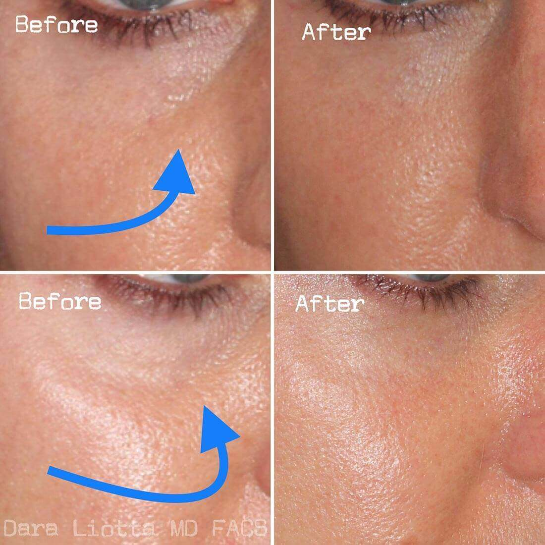 Under Eye Filler Before and After Results by Dr. Liotta 02