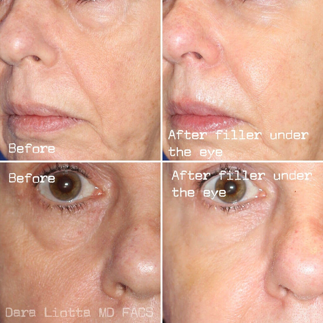 Under Eye Filler Before and After Results by Dr. Liotta 03
